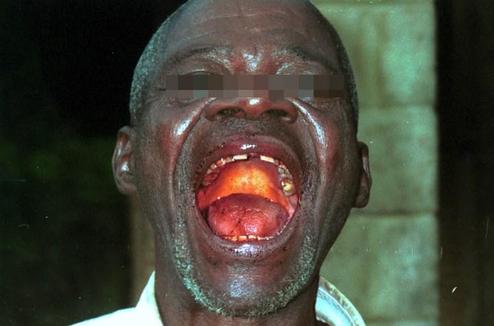 Ebola-patient1